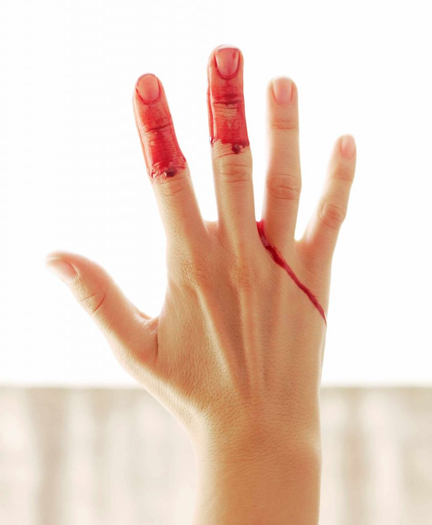 Period blood dripping